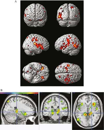 MRI Brain Scans_Physical Activity Can be Neuroprotective_The Health Sciences Academy_Raji 2016