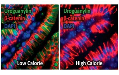 Overeating switches off feel-full hormone uroguanylin_Epigenetics_The Health Sciences Academy
