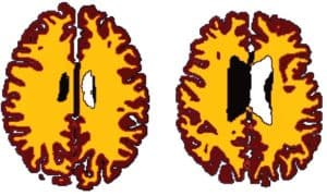 Brains of overweight individuals with white matter atrophy_The Health Sciences Academy