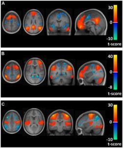 brain-areas-and-connectivity-analyse-in-distance-runners-vs-healthy-non-runners_the-health-sciences-academy