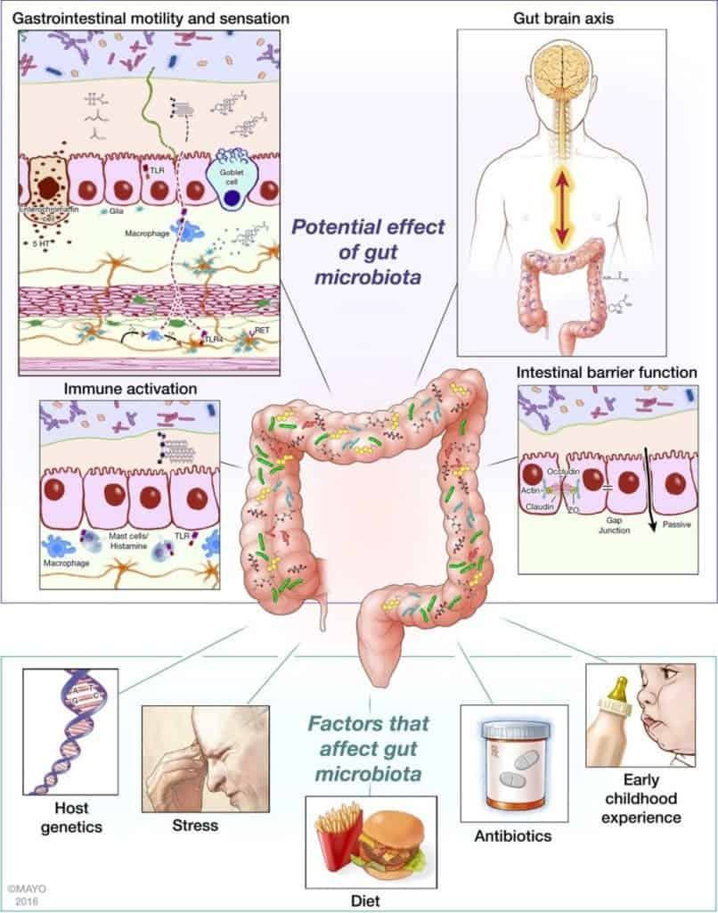 IBS risk factors: food and antibiotics alter gut microbiota